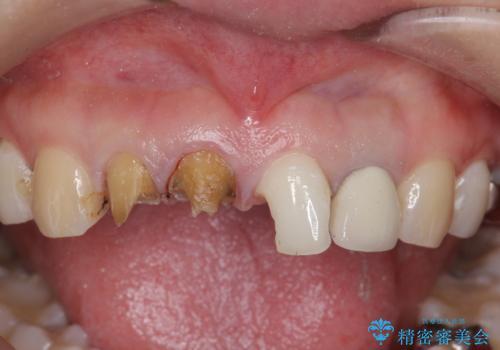 前歯の見た目を改善したいの治療中