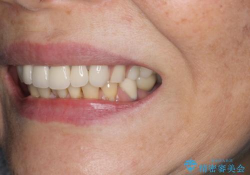 [目立たない入れ歯] ノンクラスプデンチャー   バルプラストの治療後