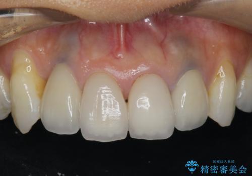 歯ぐきの黒ずみ クラウンやりかえによる改善の症例 治療後