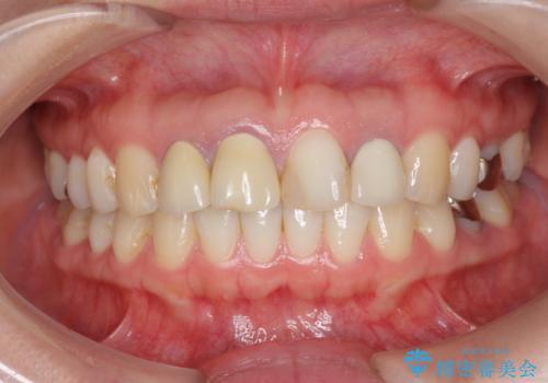 前歯の見た目を改善したいの治療前
