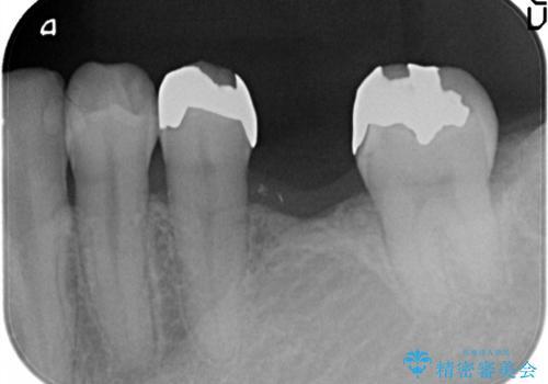 奥歯で噛めるようになりたい。オールセラミッククラウンブリッジの治療前