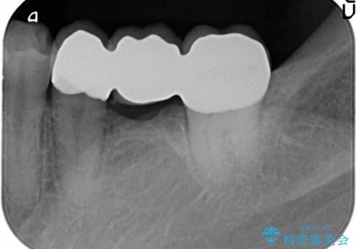 奥歯で噛めるようになりたい。オールセラミッククラウンブリッジの治療後