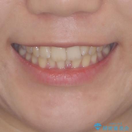 前歯のデコボコを解消 インビザラインによる矯正治療の治療前(顔貌)