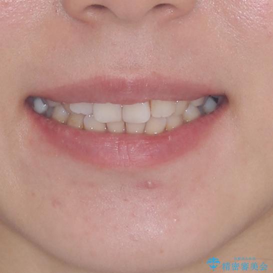 総合歯科治療 矯正治療と失活歯のセラミック補綴治療の治療前(顔貌)