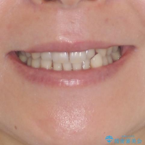 八重歯のインビザライン矯正治療の治療前(顔貌)
