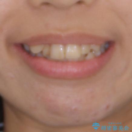 上下の八重歯を治したい インビザラインと補助装置を用いた抜歯治療の治療前(顔貌)