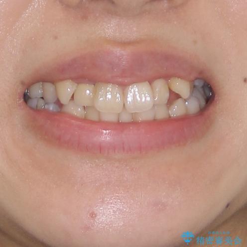 狭い上顎骨を拡大 インビザラインによる非抜歯矯正の治療前(顔貌)