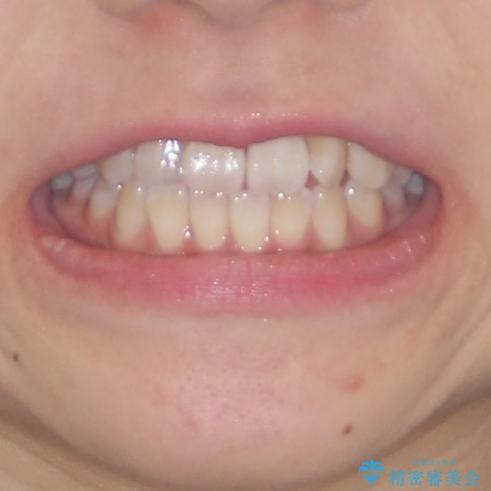 気になる前歯のデコボコ インビザラインによる矯正治療の治療前(顔貌)