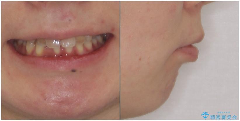 閉じにくい口元 前歯を引っ込める抜歯矯正の治療前(顔貌)