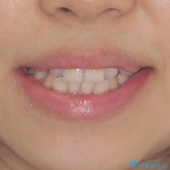 前歯の突出感とデコボコ インビザラインで改善の治療前(顔貌)