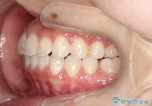 【非抜歯矯正】できる限り前歯を引っ込めたいの治療後
