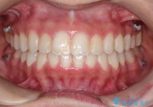 【非抜歯矯正】できる限り前歯を引っ込めたいの症例 治療後