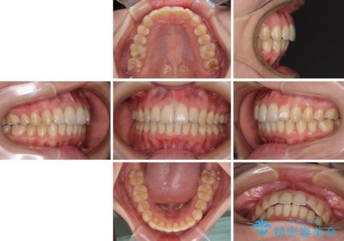 前歯のデコボコを解消 インビザラインによる矯正治療の治療後