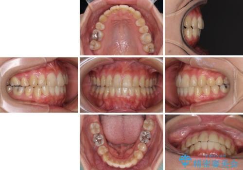 上下の八重歯を治したい インビザラインと補助装置を用いた抜歯治療の治療後