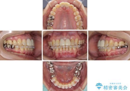 部分矯正とセラミック 前歯の審美治療の治療中