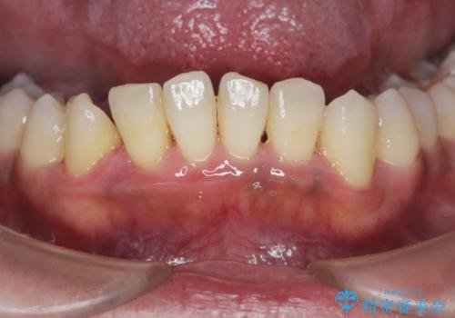 [ 非外科・歯石除去 ]  歯周初期治療による歯肉状態の改善の治療後