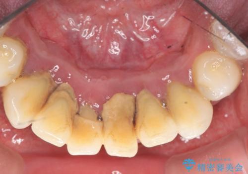 [ 非外科・歯石除去 ]  歯周初期治療による歯肉状態の改善の症例 治療前