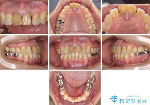 部分矯正とセラミック 前歯の審美治療の治療前