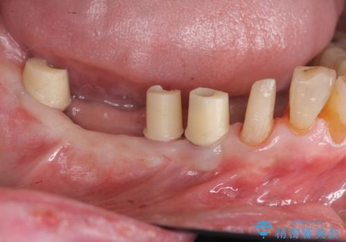 奥歯のインプラント治療の治療中