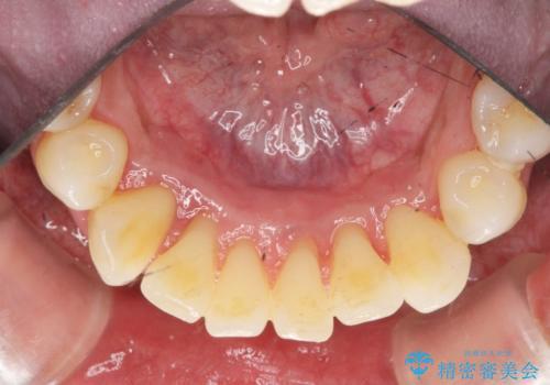 [ 非外科・歯石除去 ]  歯周初期治療による歯肉状態の改善の症例 治療後