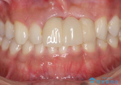 [前歯の歯根吸収] 前歯審美セラミックブリッジの製作の治療前