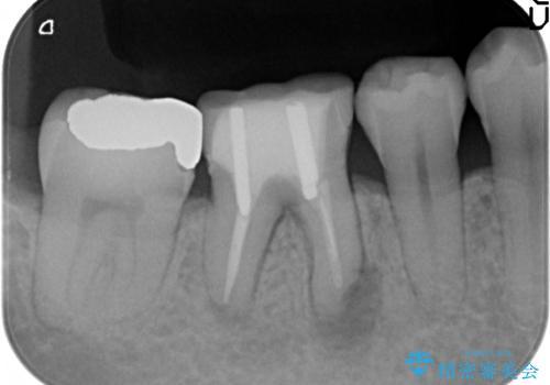 オールセラミッククラウン 歯茎から膿が出る歯の治療の治療前
