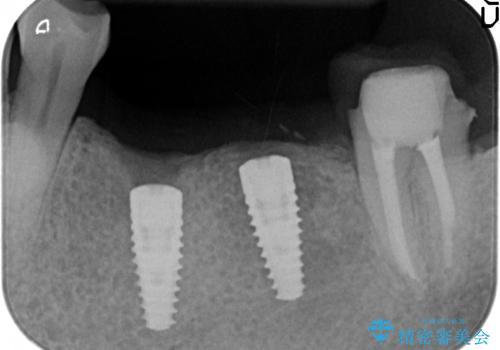 インプラント 失った奥歯の欠損補綴の治療後