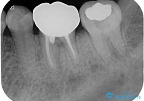 奥歯の虫歯 オールセラミッククラウンによる補綴治療の治療後