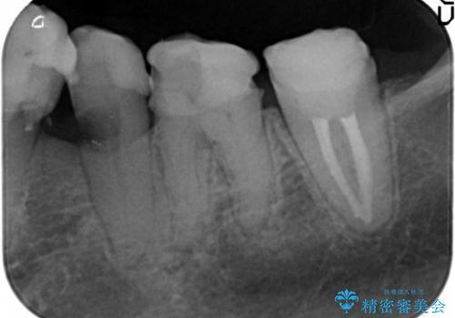 [セラミック治療]  金属色の目立つ口腔内を改善したいの治療前