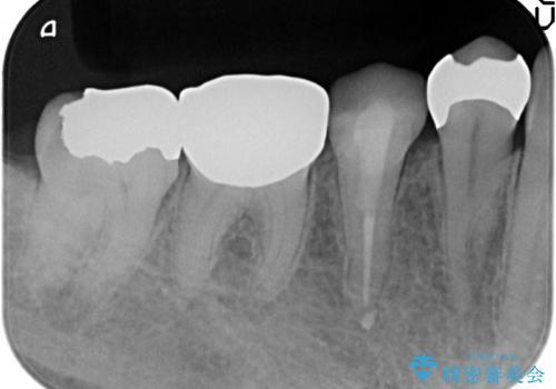 オールセラミッククラウン 違和感のある奥歯の治療の治療前