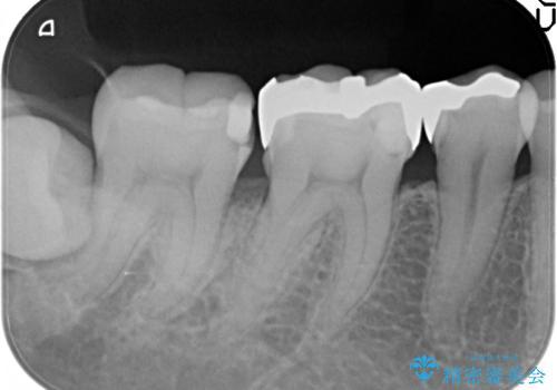 歯と歯の間に食べ物がつまる、金属を白くしたい、セラミックインレーにて修復の治療前