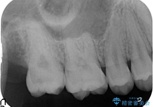 奥歯の虫歯 特殊な形をした歯の治療の治療前