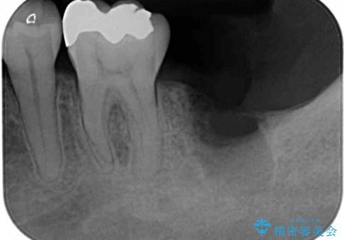 歯周病で抜歯に 奥歯のインプラント治療の治療中
