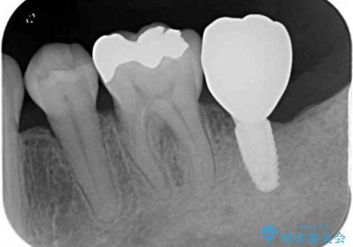 歯周病で抜歯に 奥歯のインプラント治療の治療後