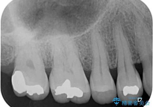 奥歯の虫歯 ゴールドインレーによる修復治療の治療後