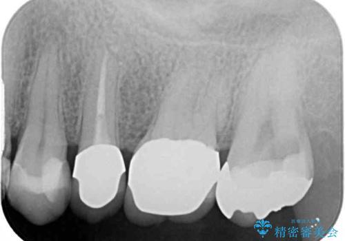 食事で痛む 神経を極力残した虫歯治療の治療前