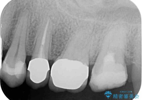 食事で痛む 神経を極力残した虫歯治療の治療中