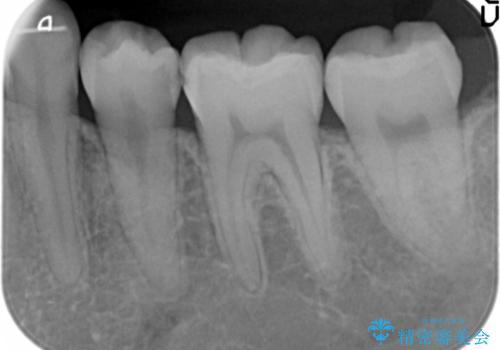 歯と歯の間の虫歯治療 セラミックインレーで治療の治療前