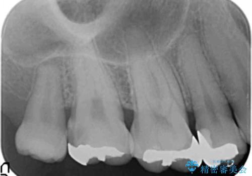 食べ物が詰まる 親知らずが原因の虫歯再発の治療前
