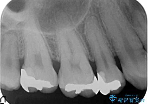 食べ物が詰まる 親知らずが原因の虫歯再発の治療後