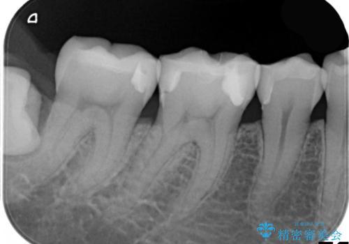 歯と歯の間に食べ物がつまる、金属を白くしたい、セラミックインレーにて修復の治療後