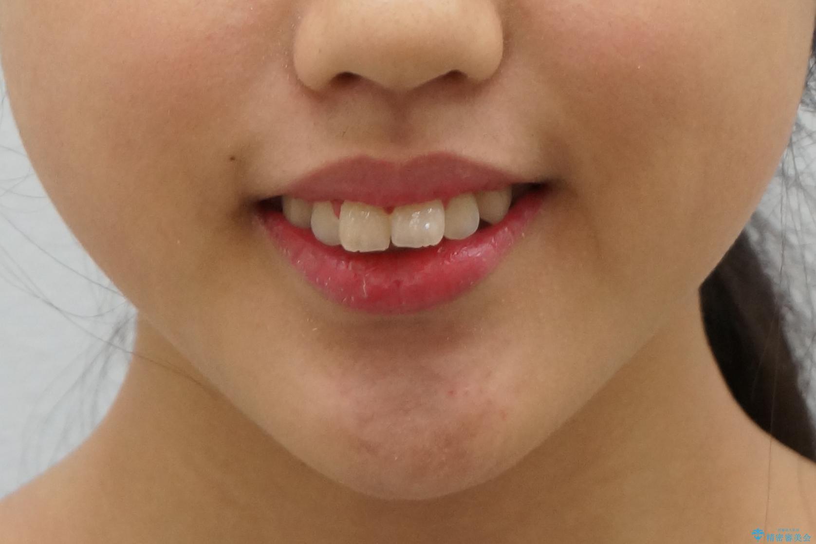 中学生のマウスピース矯正 歯を抜かずにキレイにの治療前(顔貌)