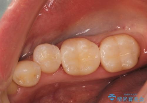 歯と歯の間に食べ物がつまる、金属を白くしたい、セラミックインレーにて修復の症例 治療後