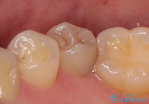 オールセラミッククラウン ズキズキ痛む虫歯の治療の治療前