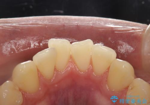 PMTCで歯をキレイにの治療後
