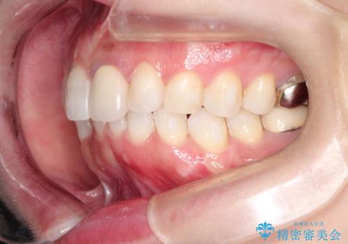 インビザラインによる非抜歯矯正 ガタガタな歯並びを整った歯並びへの治療中