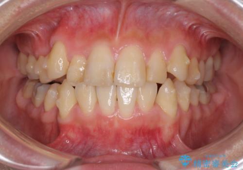 上下の八重歯を治したい インビザラインと補助装置を用いた抜歯治療の治療中