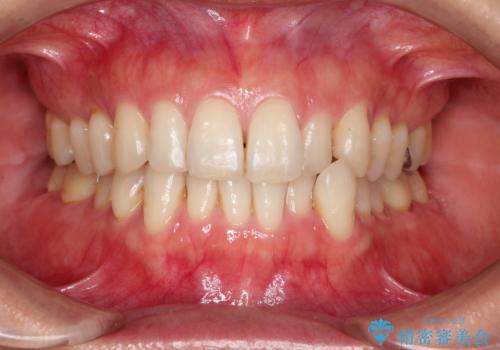 八重歯のインビザライン矯正治療の症例 治療前