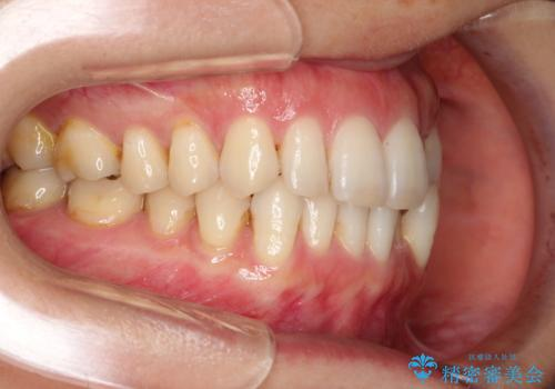 八重歯のインビザライン矯正治療の治療前