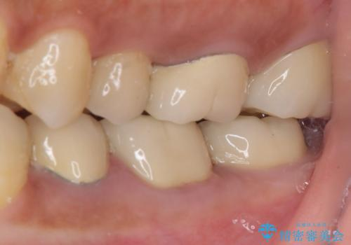 食事で痛む 神経を極力残した虫歯治療の治療後